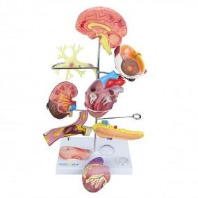 Modelo Anatomico de Órgãos Afetados Pela Diabetes em 11 Partes