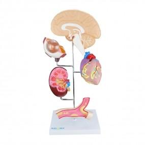 Modelo Anatomico de Órgãos Afetados Pela Hipertensão em 8 Partes