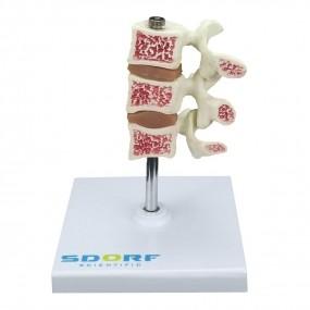 Modelo Anatomico de Osteoporose