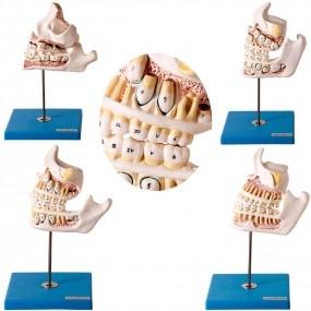 Modelo Anatomico Desenvolvimento Da Dentição, 4 Peças