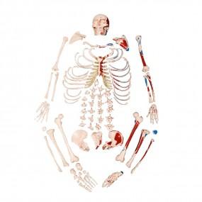 Modelo Anatomico Esqueleto Padrão Desarticulado com Origem E Inserção Muscular