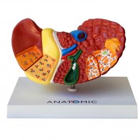 Modelo Anatomico Fígado com Patologia