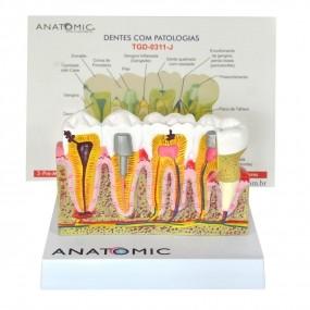 Modelo Anatomico Patologia Dentária E Placa Explicativa