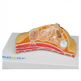 Modelo Anatomico Patológico de Mama