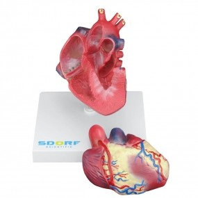 Modelo Anatomico Patológico do Coração com Hipertrofia em 2 Partes