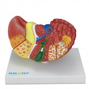Modelo Anatomico Patológico do Fígado E Vesícula Biliar