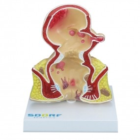 Modelo Anatomico Patológico do Reto