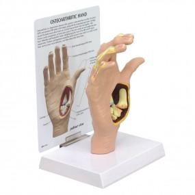 Modelo de Mão com Osteoartrose