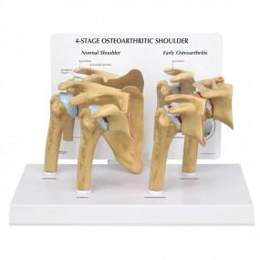 Modelo de Ombro com Osteoartrose (oa) em 4 Estágios