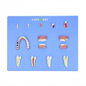 Modelo de Patologias Dentárias c/ 12 Partes em Placa