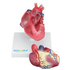 Modelo Patológico do Coração com Hipertrofia em 2 Partes
