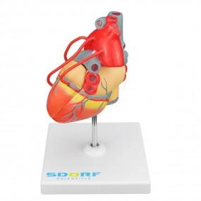 Modelo Patológico do Coração com Pontagem Coronária