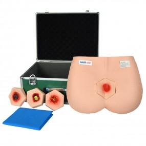 Modelo Simulador de Estágios de Úlceras por Pressão