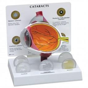 Olho com Catarata