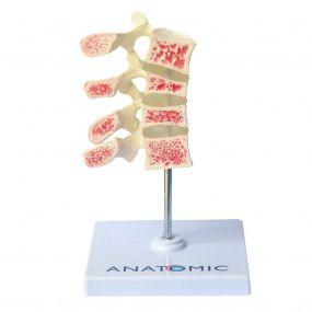 Osteoporose 4 Vértebras