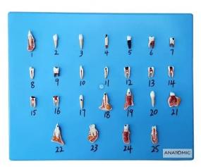 Patologia Dentária em 25 Partes