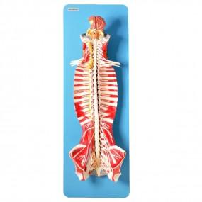 Sistema de Medula Espinhal em Seu Canal, em Placa