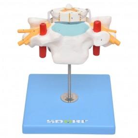 Vértebra Cervical c/ Cordão Espinhal