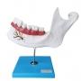 Anatomia do Dente em 6 Partes - Anatomic - TZJ-0313