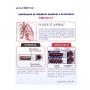 Modelo Anatomico Comparação de Brônquio Saudável E Patológico