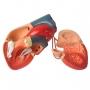 Modelo Anatomico Coração com Pontagem Coronária