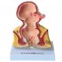 Modelo Anatomico do Reto com Patologias