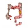 Modelo Anatomico Intestino Grosso com Patologia