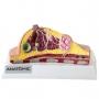 Modelo Anatomico Mama com Patologias