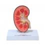 Modelo Anatomico Rim com Patologias