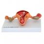 Modelo Anatomico Útero com Trompas Patológico