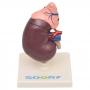 Rim c/ Glândula Supradrenal em 2 Partes