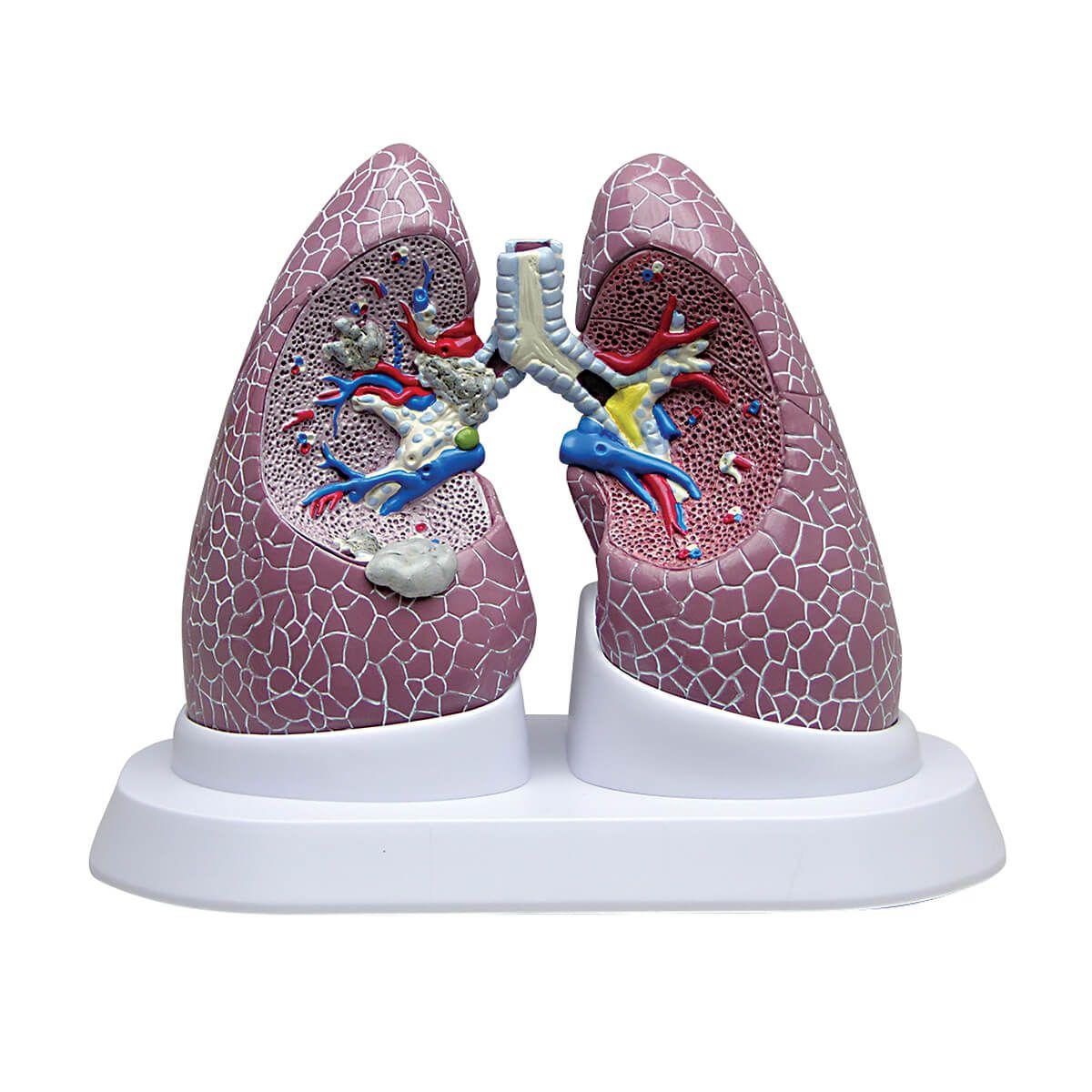 Conjunto de Pulmão com Patologias