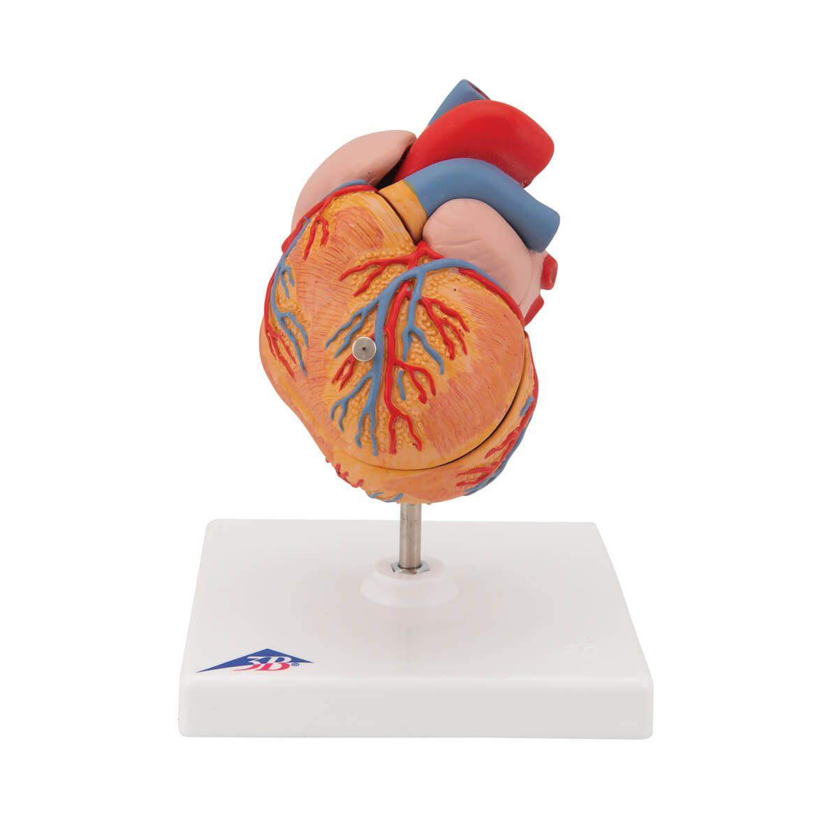 Coração Clássico com Hipertrofia Ventricular Esquerda, 2 Partes