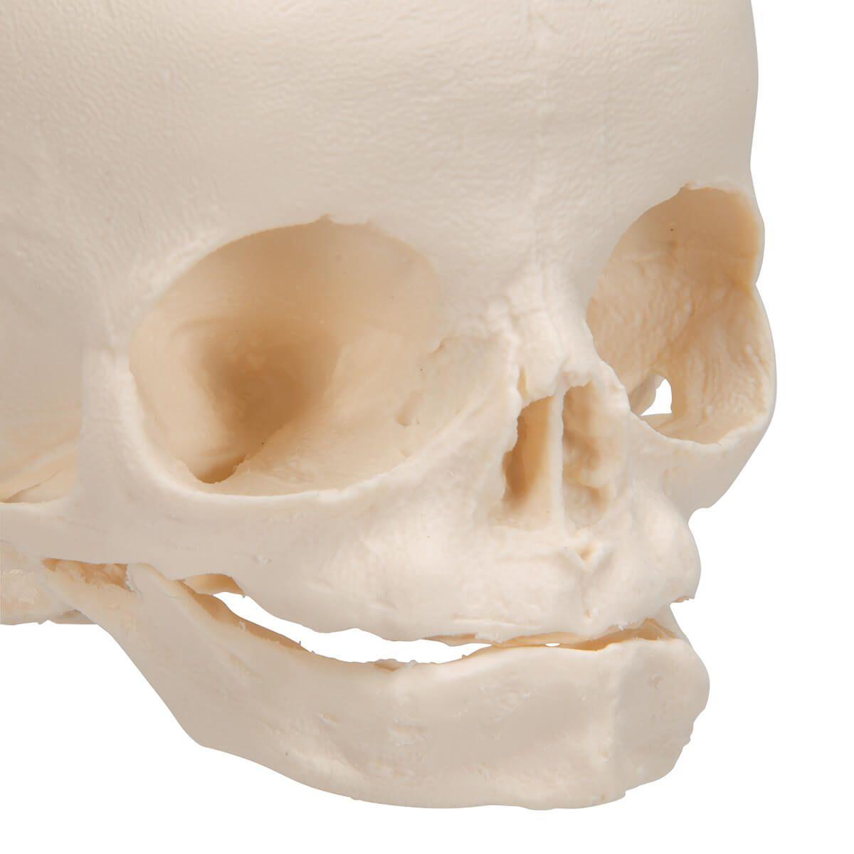 Crânio de Feto