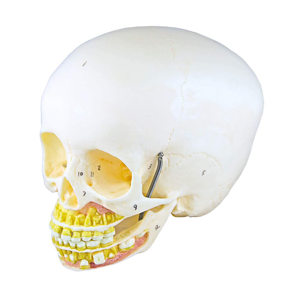 Crânio Infantil com Mandíbula Aberta, em 2 Partes
