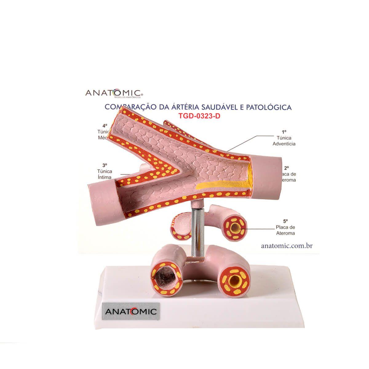 Modelo Anat. Comparação Da Artéria Saudável E Patológica
