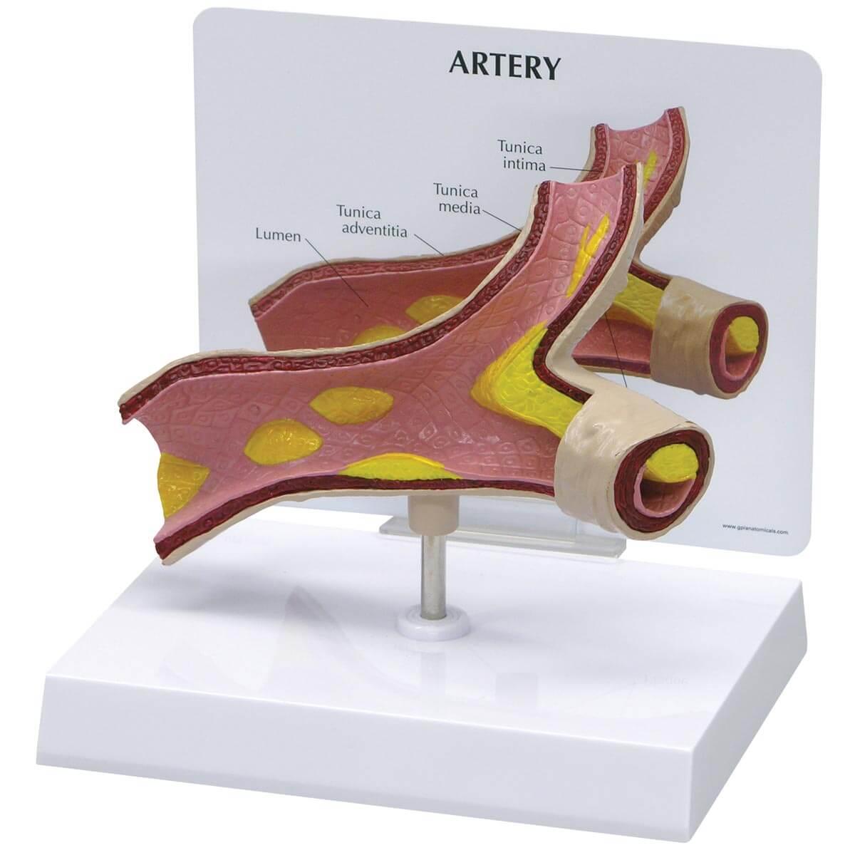 Modelo de Artéria