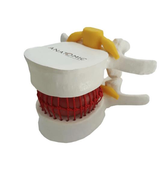 Modelo Funcional do Prolapso Intervertebral