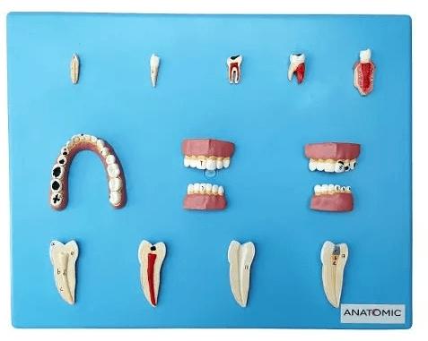 Patologia Dentária em 12 Partes