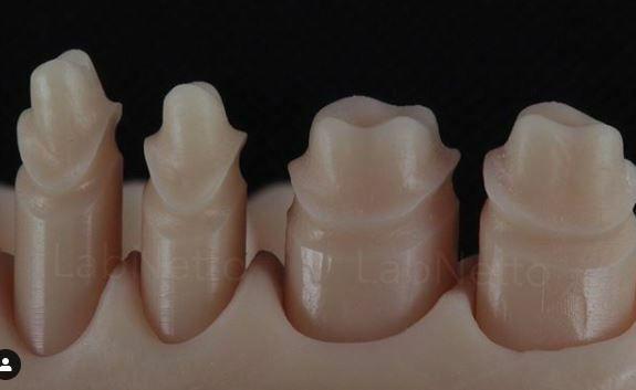 Resina Dental para Uso Odontologico - Horus - SLA/DLP  - Marfin de 500 ml
