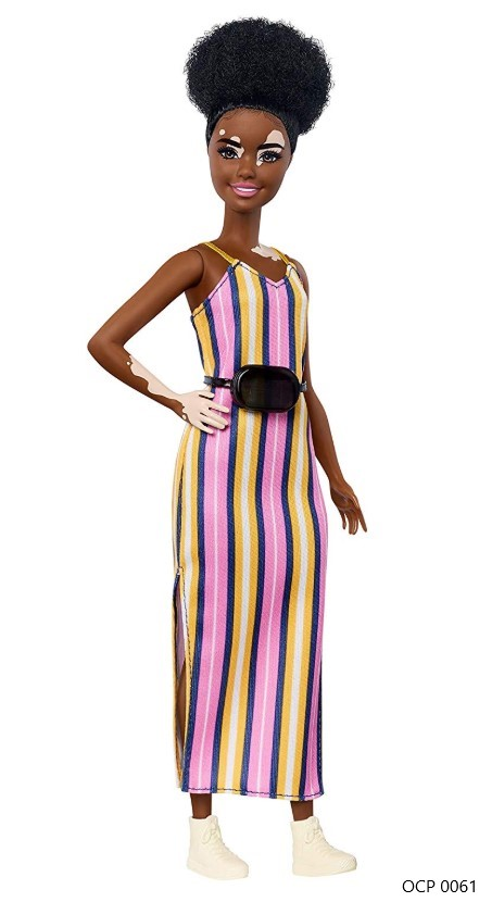 Boneca Barbie Fashionistas 135 Vitiligo Vestido Longo Listrado - Mattel