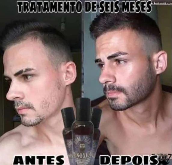 Minoxidil 10% Loção Tônico Capilar Cabelo e Barba Original 120ml Dom Pelo