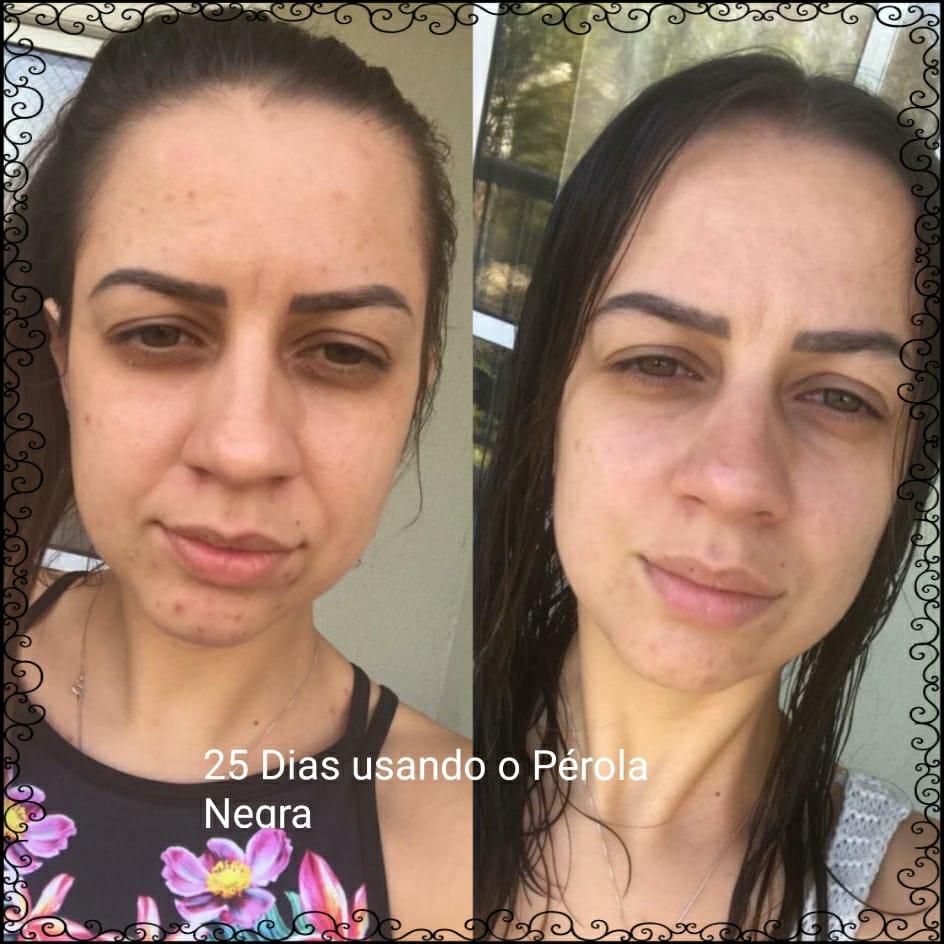 Pérola Negra Tratamento de 4 meses