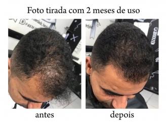 Tônico Capilar para Crescimento Barba Cabelo Bigode Sobrancelha Orgânico Antiqueda Cresce Pelo 60ml