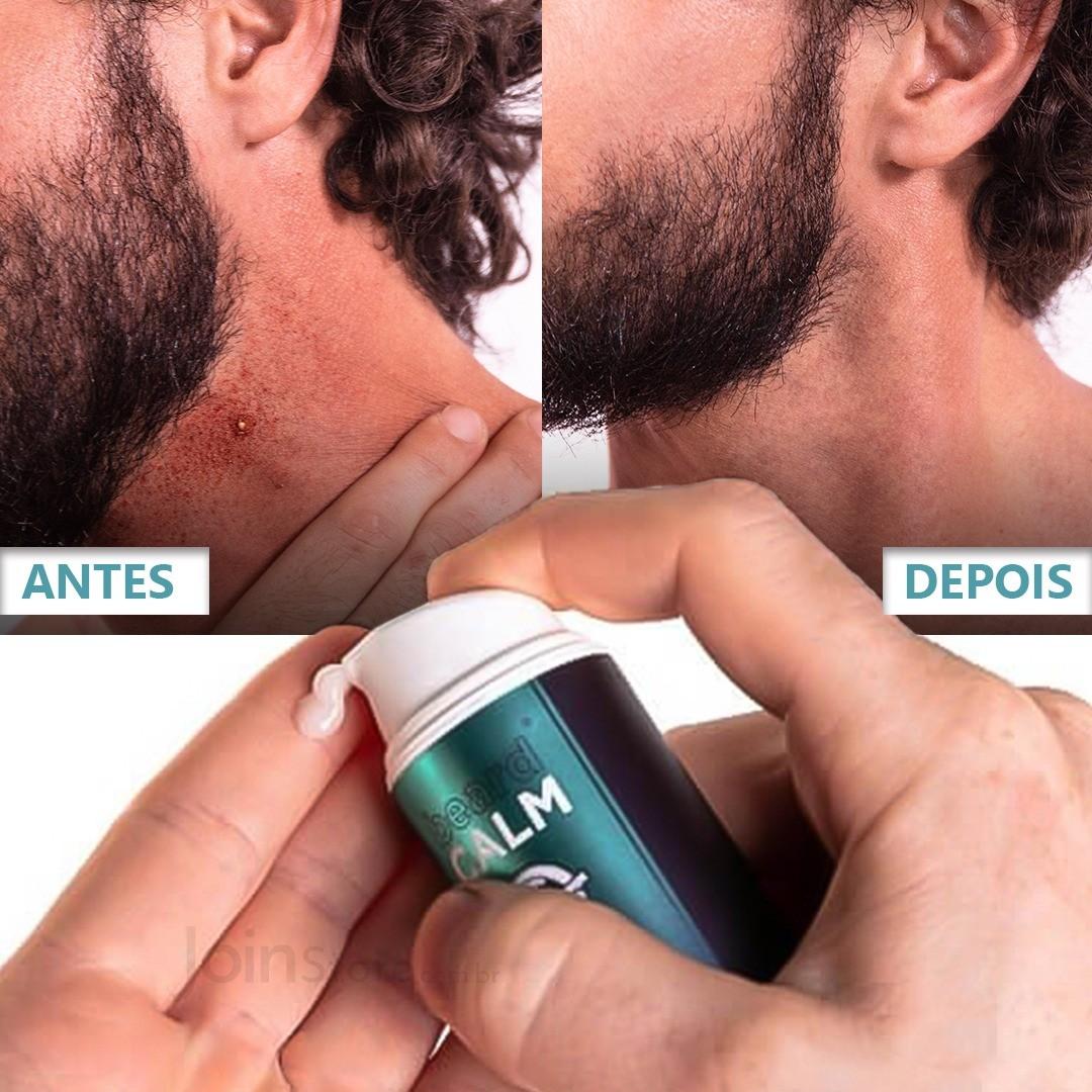 Beard Calm contra Coceira e Foliculite - 30ml  2 meses - Barba De Respeito