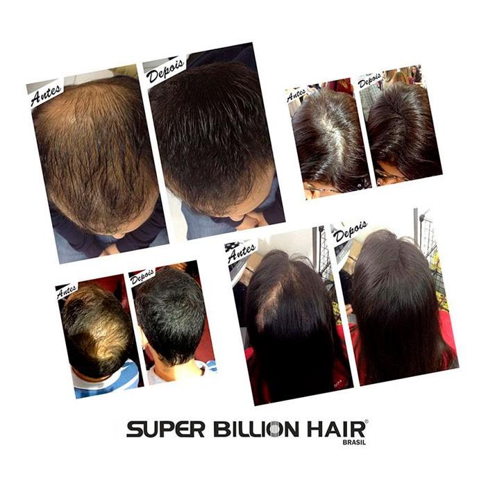Kit Super Billion Hair Fibras de Queratina 25g + Shampoo Antiqueda 200ml + Spray Fixador 120ml + Brinde