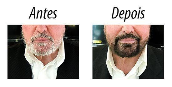 Tinta / Shampoo Escurecedor de Barba Dexe - Preto 15ml x 2