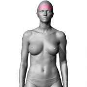 10 Sessões Depilação a Laser de Testa Feminino