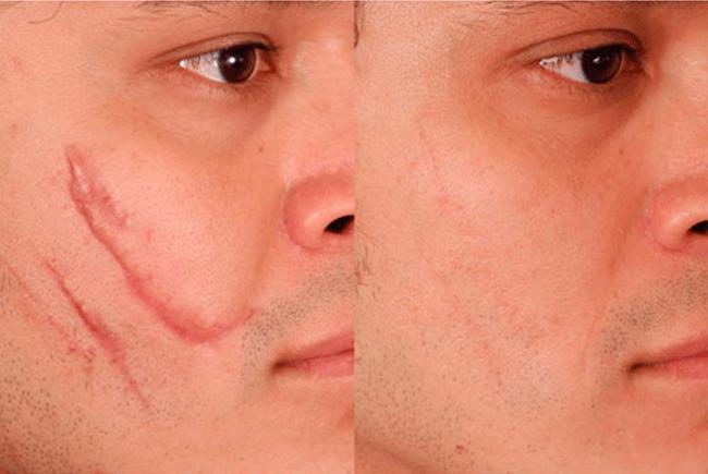 Dermaroller Skin Roller 1,5mm