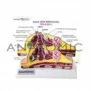Modelo de mama patológico TGD0323-O - Anatomic